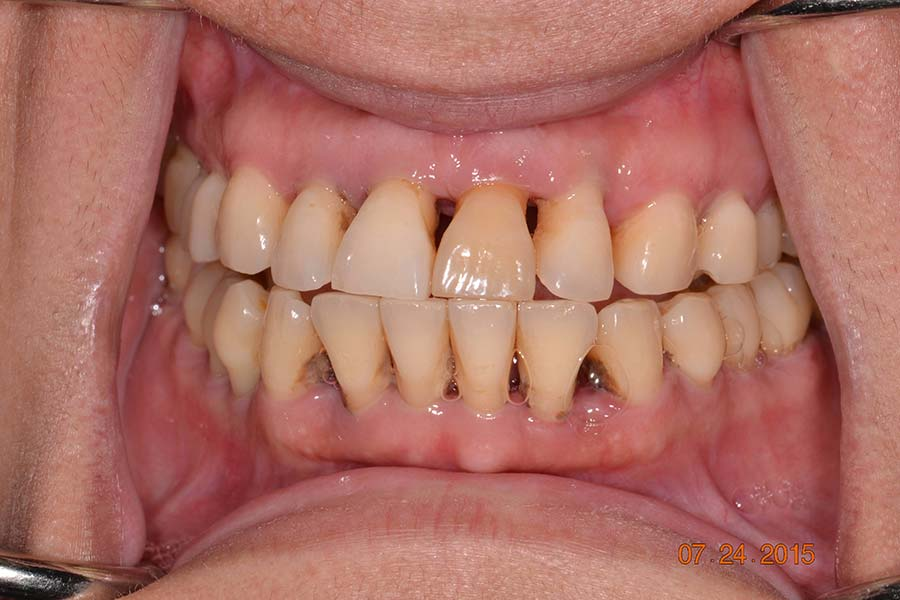 All-on-4 Implant dentures before and after photos