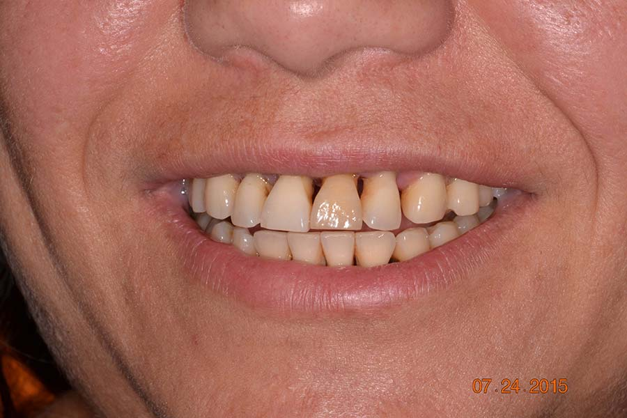 SAll-on-4 Implant dentures before and after photos