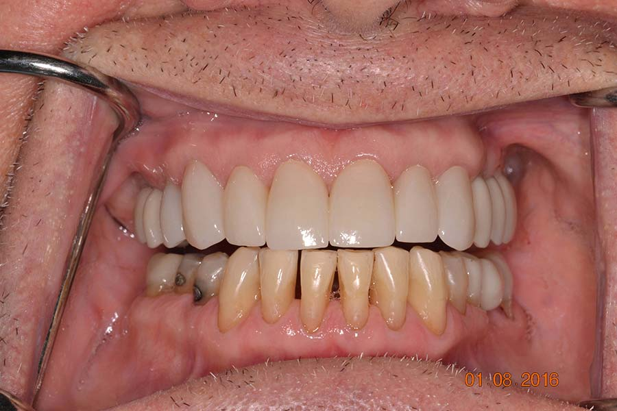 Smile makeover with crowns and implants before and after photos