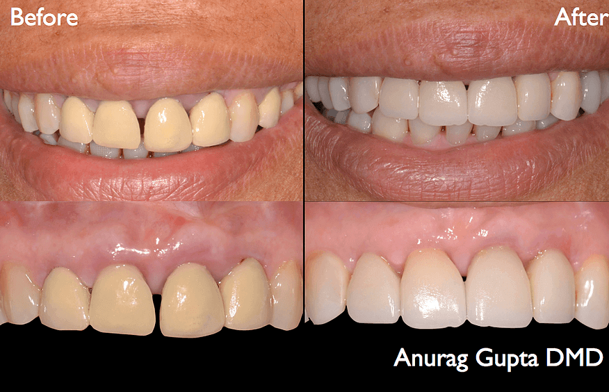 Before and after use of CEREC crowns
