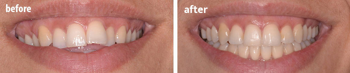 Invisalign before and after 2